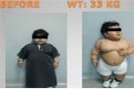 Ca phẫu thuật giảm cân cho người trẻ nhất thế giới