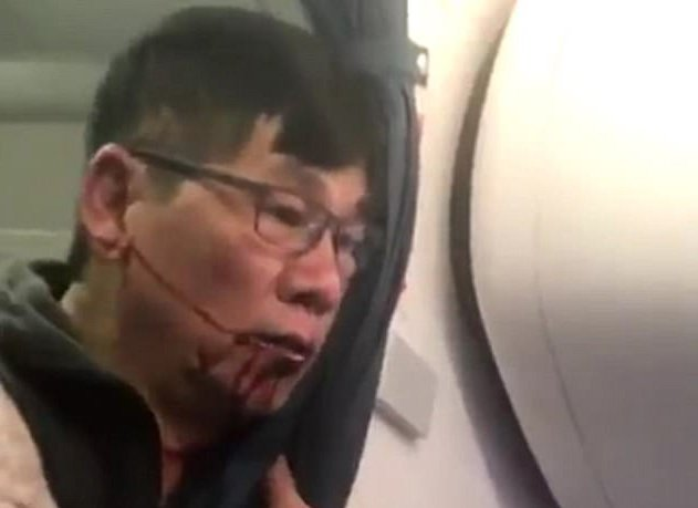 United Airlines boi thuong lon cho bac sy goc Viet hinh anh 1