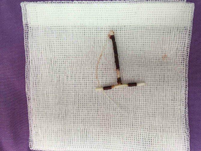 Vong tranh thai di lac trong o bung nguoi phu nu hinh anh 1