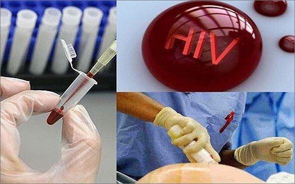 Phat hien them 3.500 truong hop nhiem HIV trong 6 thang dau nam 2018 hinh anh 1