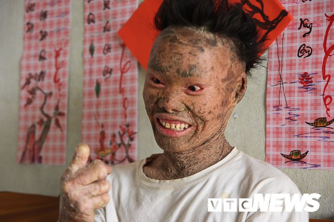Anh: 'Nguoi ca' Ngo Van Tho dung cam livestream tren facebook de khong bi 'hoa tan' hinh anh 3