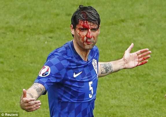 Truc tiep Euro 2016: Croatia vs Tho Nhi Ky hinh anh 8