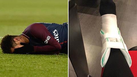 Neymar co nguy co nghi 3 thang, chac chan vang mat tran PSG vs Real hinh anh 1