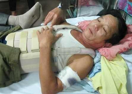 Ông Hoàng đang nằm điều trị tại bệnh viện - Ảnh: MTG
