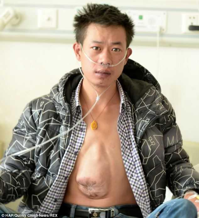 Ho Zhiliang với trái tim trong ổ bụng