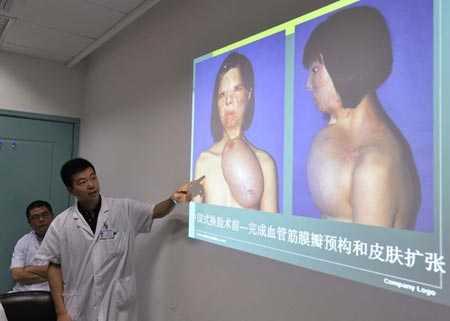 Bác sĩ đề xuất phát triển một khuôn mặt trên ngực sử dụng mô ghép từ chân của Xu.