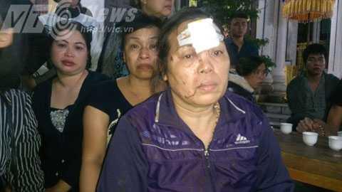 Bà Nguyễn Thị Toàn kể lại giây phút xe mất lái lật nhào - Ảnh Minh Khang