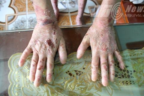Bàn tay, bàn chân 2 cháu lúc mới sinh thì có móng, nhưng sau đó thì cứ cụt dần - Ảnh Minh Khang
