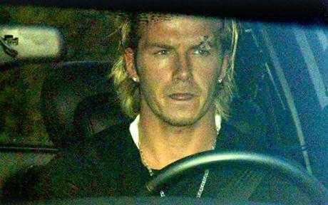 Beckham về nhà với vết rách khá sâu sau vụ việc ầm ĩ trong phòng thay đồ.