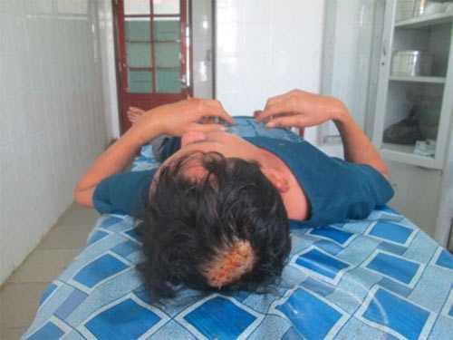 Ông Thủy bị thương nặng, đang điều trị tại Bệnh viện Đa khoa Hà Tĩnh