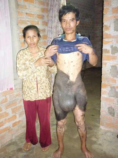 Đào Văn Đông bên cạnh mẹ của mình