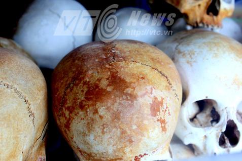 Hộp sọ của những nạn nhân bị sát hại bởi gậy gỗ mun