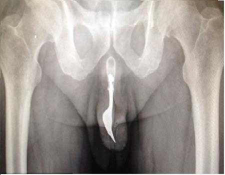 Hình ảnh chiếc nĩa dài 10cm mắc kẹt trong dương vật bệnh nhân.