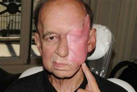 Mặt ông Eric sau phẫu thuật cắt khối u.