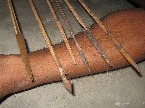 Ngoài việc tẩm độc mũi tên được chế thêm sắt