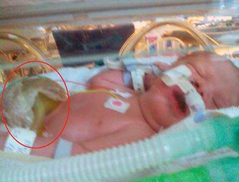 Vòng tròn đỏ chính là màng ẩm nhân tạo để giúp bảo vệ phần nội tạng lòi ra noài của cô bé đáng tương Piper sau khi chào đời