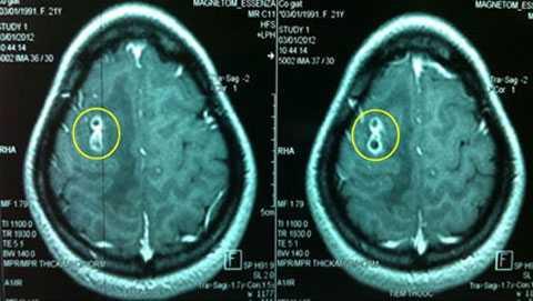 Hình ảnh chụp MRI của bệnh nhân Lan Hương (ảnh do bác sỹ cung cấp)
