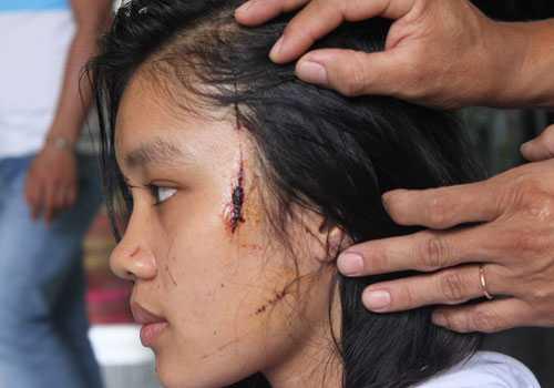 Những vết thương trên gương mặt của nữ sinh Trần Nữ Diễm Trinh.