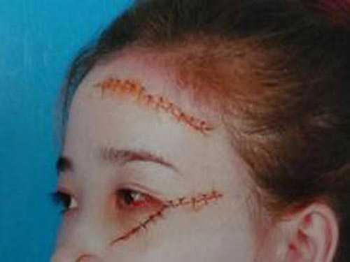 Nữ sinh T. bị nhiều vết rạch khắp mặt.