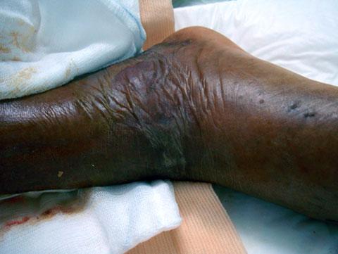 Vết thương trên chân bà Jũng
