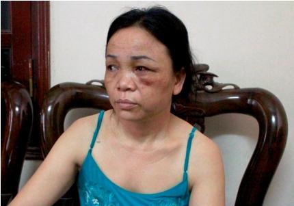 Bà Hợp bị nhiều vết bầm tím do nhóm người gây ra. Ảnh do nạn nhân cung cấp.