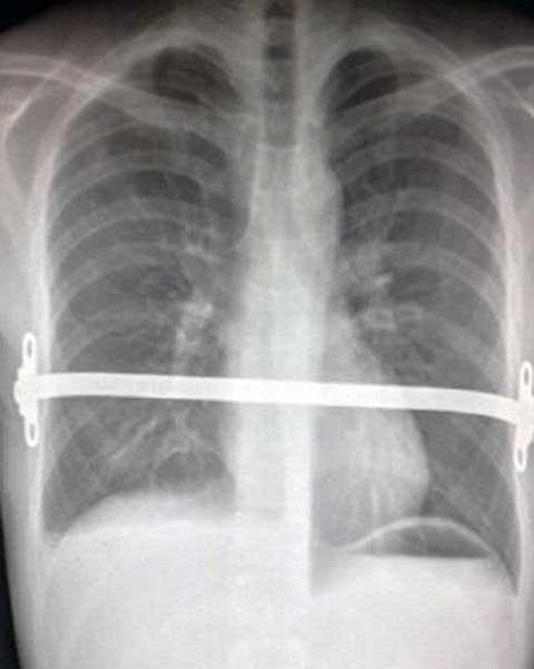 Các bác sĩ đã sáng tạo một thanh đỡ bằng kim loại gắn cố định vào ương của Dale để bảo vệ tim và phổi của anh