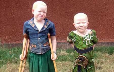 Trẻ em thường là đối tượng bị chặt chân tay của bọn tay sai cho thầy phù thủy
