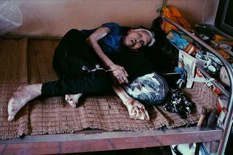 Nằm một chỗ trên chiếc giường lỉnh kỉnh những chăn gối, xống áo cũ là cụ Trần Thị Miên (93 tuổi, Bắc Ninh). Cũng như bà Hiền hay nhiều mảnh đời khác trong trại phong, cụ Miên là người phụ nữ tột cùng bất hạnh. Nỗi đau về thể xác, nỗi khắc khoải, day dứt về tinh thần luôn thường trực trong cụ kể từ ngày phát bệnh. Chồng ruồng bỏ, cô con gái nhỏ chưa đầy 2 tháng tuổi cũng phải rời xa vì sốc thuốc. Đến tận bây giờ, khi chẳng thể minh mẫn, cụ vẫn đau đáu nói với những người vừa mới gặp về một người con gái đẹp, đôi mắt tròn to, mái tóc đen dài.