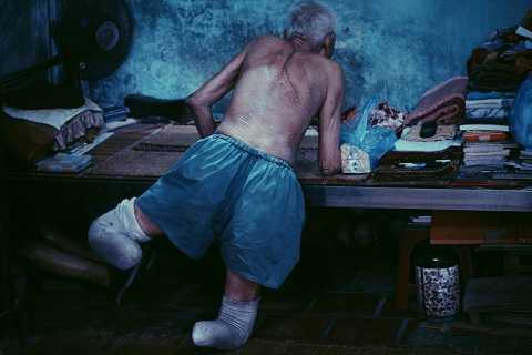 """Ông Nguyễn Xuân Phước (83 tuổi) bị cụt cả hai chân. Ông kể: """"Trước đây, khi chưa có đôi chân giả, mỗi lần đi lại tôi phải dùng hai tay lết từ chỗ này qua chỗ khác, có lúc ngã dúi đầu về phía trước, giập trán đổ máu""""."""
