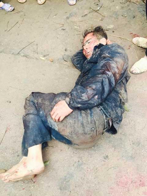 Đối tượng trộm chó bị người dân bắt giữ