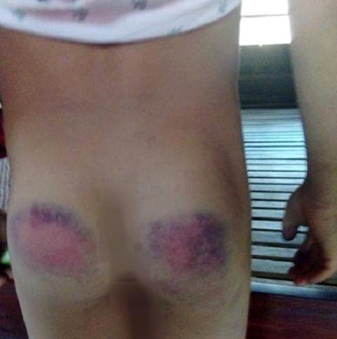 Vết thương của em Vũ do cô giáo dung thước gỗ đánh