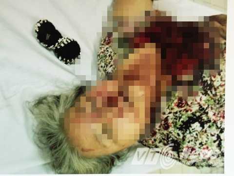 Cụ bà bị côn đồ đánh thương tích - Ảnh: Phan Cường