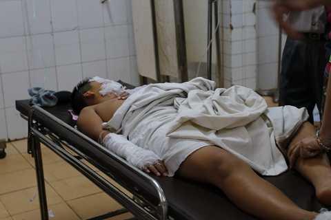 Học sinh bị thương phải vào bệnh viện điều trị -Ảnh:TH