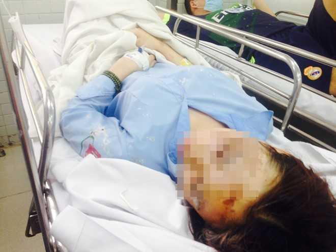 Nữ sinh bị tạt axít đang được cấp cứu. Ảnh: K.T
