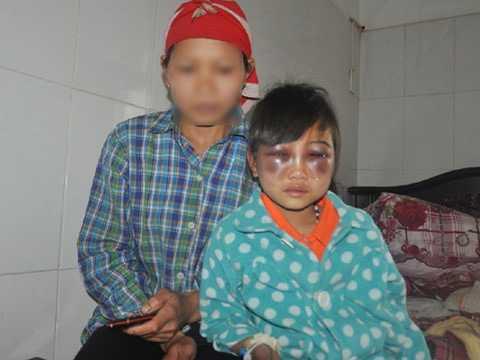 Cháu Phàn Chung Thủy bị sưng hai mắt do cô giáo đánh. Ảnh: Vietnamnet