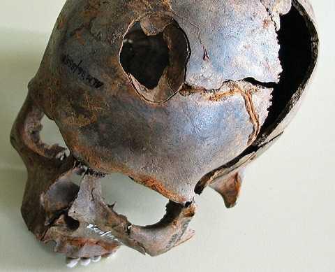 Nhiều bộ xương bị gãy, hộp sọ cũng bị vỡ. Ảnh Dailymail
