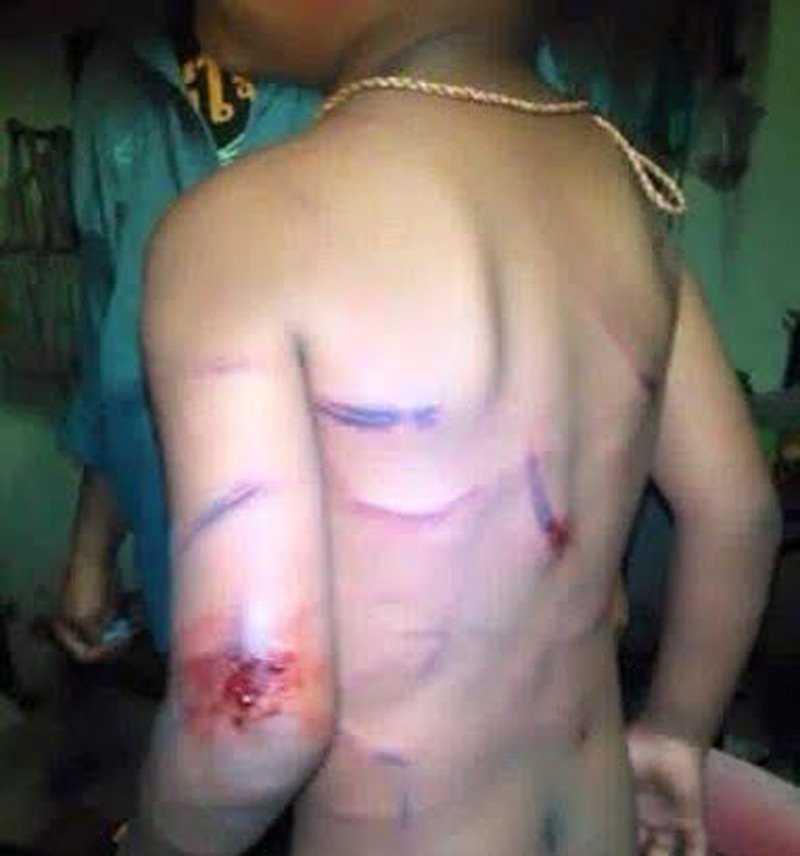 Hình ảnh bé trai bị đánh dã man lan truyền trên mạng xã hội
