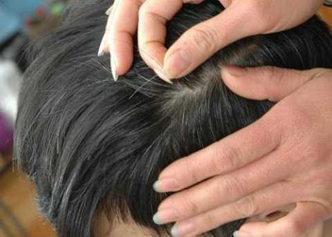 Tránh nhổ tóc khi có hiện tượng tóc bạc