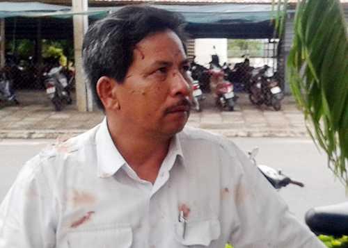 Tài xế xe khách Nguyễn Du chưa hết bàng hoàng chứng kiến tai nạn - Ảnh:  Vnexpress