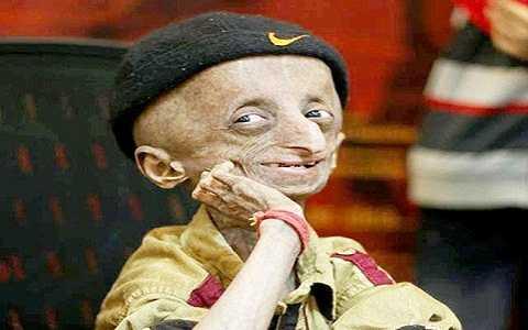 Cậu bé Nihal Shrinivas Bitla mắc hội chứng Progeria, một căn bệnh lão hóa hiếm gặp khiến cơ thể cậu già nhanh hơn người bình thường gấp 8 lần
