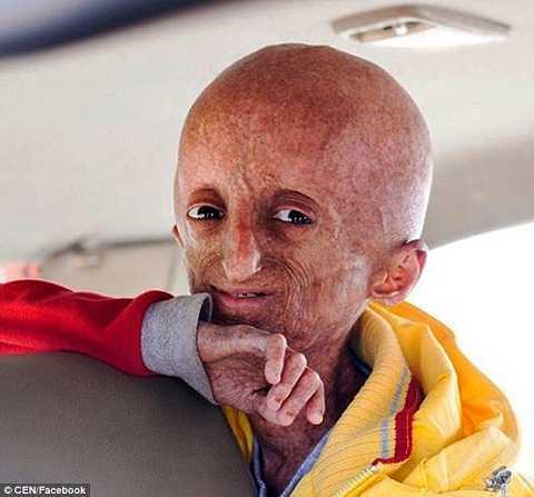 Cậu bé đã kết thúc cuộc đời ngắn ngủi của mình ở độ tuổi 15 tại một bệnh viện ở thành phố Karimnagar, bang Telangana, Ấn Độ