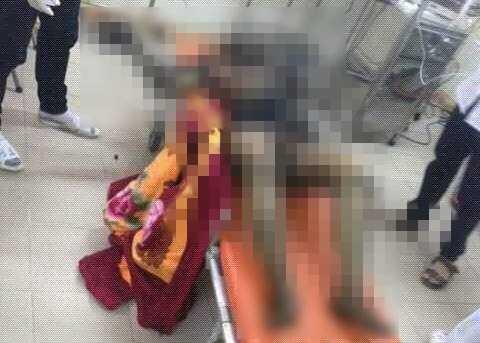 Chị Mạc Thị Cẩm Tú đã tử vong sau khi được đưa đi cấp cứu do bị bỏng quá nặng