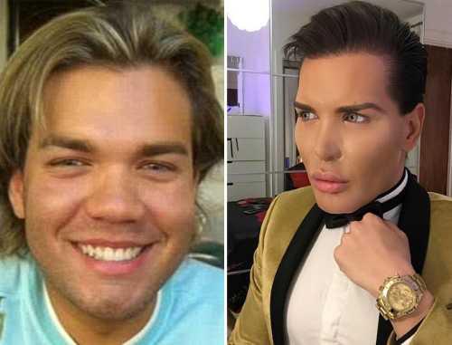 Rodrigo trước và sau khi phẫu thuật. Ảnh: DM & Rodrigo Alves.
