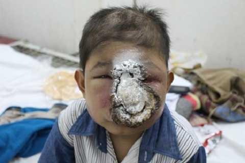 Cháu Trương bị biến dạng khuôn mặt do ung thư hốc mũi