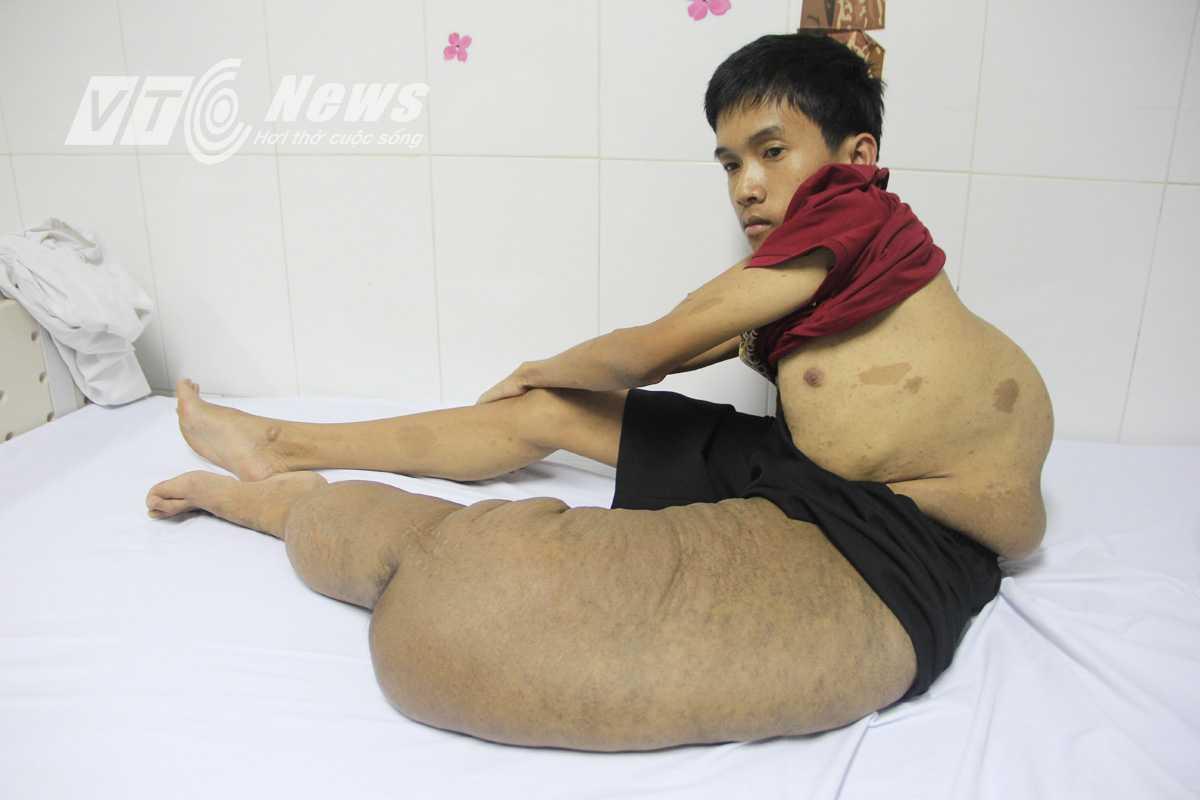 22 tuổi, cao khoảng 1,1 mét, nặng hơn 30 kg nhưng riêng cái chân trái áng chừng đã nặng bằng nửa trọng lượng cơ thể. Ảnh Đức Thuận