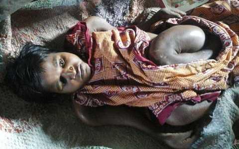 Kumari mắc phải căn bệnh xương hiếm gặp khiến cô không thể đi lại, tay chân cong như cành cây. Ảnh Mirror
