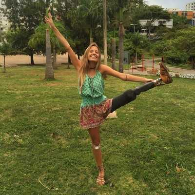 Paola vẫn luôn vui vẻ và lạc quan dù đã bị mất đi một chân khiến nhiều người ngưỡng mộ