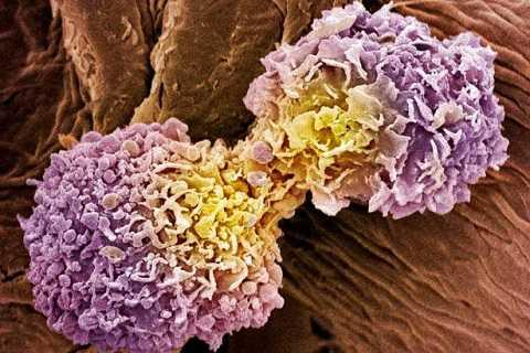 Tế bào ung thư vú