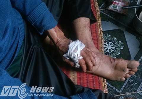 Ông Trần Văn Khá bị nhiều vết thương ở tay, chân, được chính người con trai của mình băng bó