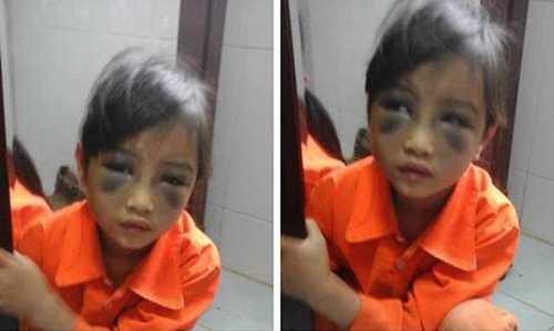 Hình ảnh nữ sinh lớp 1 Phàn Chung Thuỷ bị đánh tím mặt gây bức xúc dư luận.
